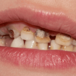 14 Penyebab Gigi Berlubang dan 6 Cara Mengatasinya