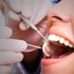 Cara Mengatasi Gigi Berlubang Parah, Antara Dicabut atau Ditambal