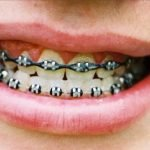 9 Cara Merapikan Gigi yang Tidak Beraturan Secara Alami Mudah Murah