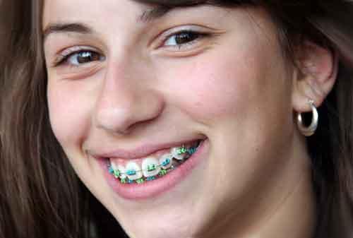 cara merapikan gigi gingsul tanpa behel