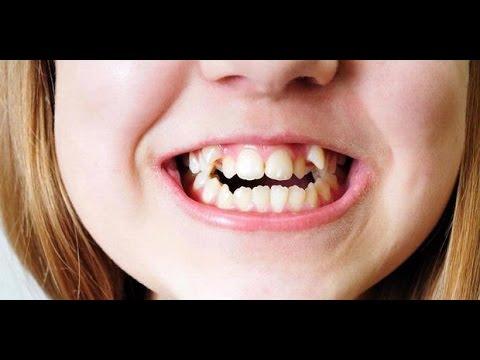 cara merapikan gigi yang tidak beraturan