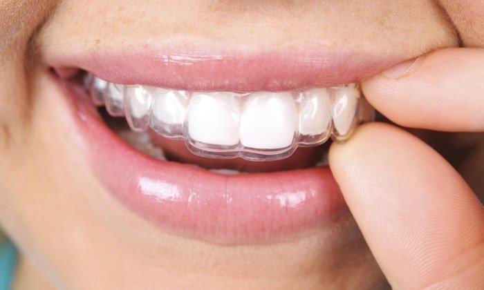 cara merapikan gigi yang renggang