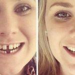 Perubahan Wajah Setelah Pakai Behel – Tampak Lebih Cantik dan Ganteng