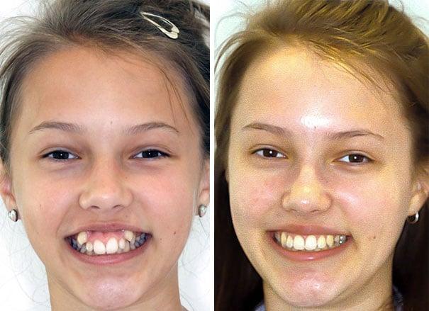 perubahan wajah setelah pakai behel