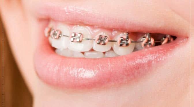 harga pemasangan behel gigi
