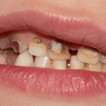 Penyebab Sakit Gigi Berlubang – Cukup Ditambal atau Harus Dioperasi