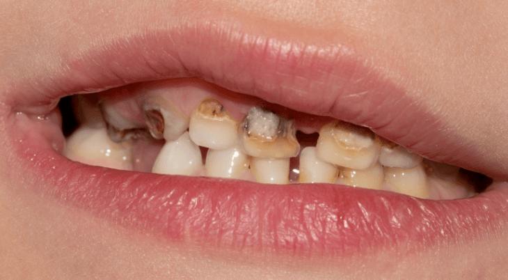 penyebab sakit gigi berlubang