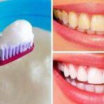 8 Cara Menghilangkan Karang Gigi dengan Baking Soda