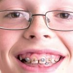 Gigi Tonggos Parah dan Cara Mengatasinya