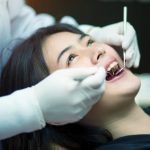 Berapa Harga Tambal Gigi Depan Patah Setengah