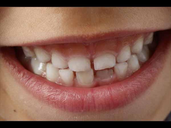 biaya veneer gigi renggng
