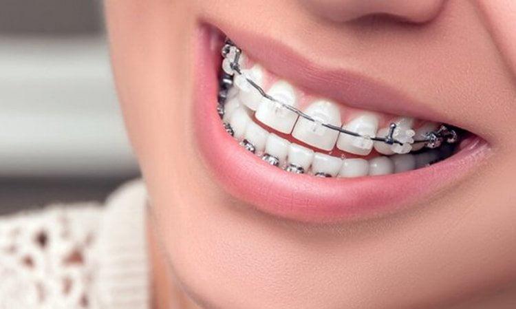 cara merapatkan gigi depan yang renggang