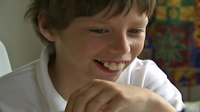 Kebiasaan Anak yang Mengakibatkan Gigi Tonggos