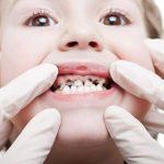 Gigi Sakit Berlubang – 57,6% Warga Punya Masalah Gigi dan Mulut