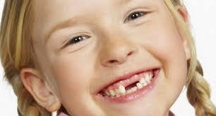 cara merapikan gigi anak yang berantakan