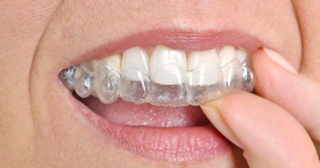 cara merapikan gigi tanpa behel