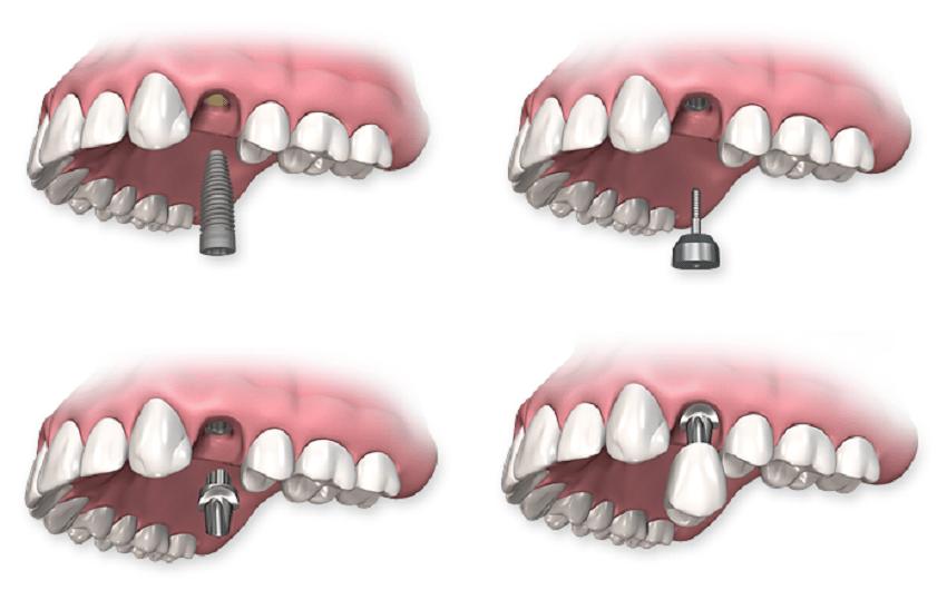 gigi palsu permanen