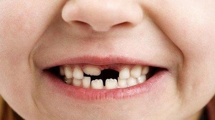 jenis gigi palsu yang ditanggung bpjs