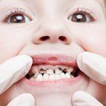6 Cara Mencegah dan Mengatasi Gigi Keropos