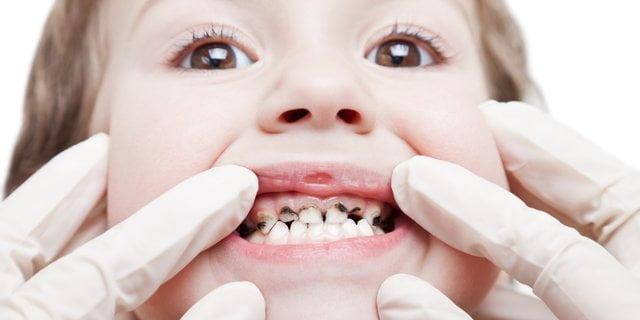 cara mencegah gigi keropos