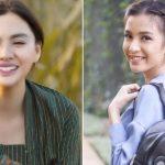 Wajah Yang Cocok Untuk Gigi Kelinci, Banyak Artis Pakai