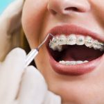Daftar Harga Kawat Gigi dan Biaya Pemasangan Kawat Gigi