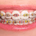 6 Jenis Behel Untuk Gigi Tonggos, Pilih Yang Terbaik & Cocok Harga