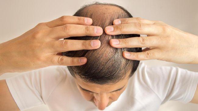 cara merawat rambut rusak dan kering