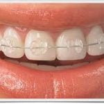 Harga Behel Damon Transparan – Gigi Tak Sakit, Wajah Lebih Muda