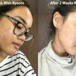 Review Byoote Collagen – Dalam Sebulan Wajahku Kembali Mulus
