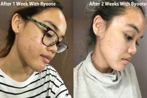 review byoote collagen