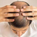 9 Shampo Yang Bagus Untuk Rambut Rontok