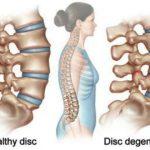 Tulang Keropos – Hati-hati Anak & Remaja Bisa Kena