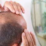 5 Shampo Penumbuh Rambut Botak Tercepat