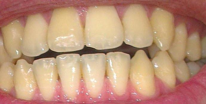 pasta gigi untuk memutihkan gigi kuning